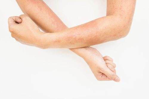 8 Different Types of Dermatitis