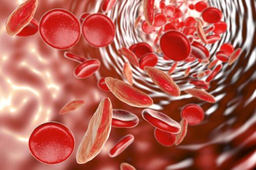 poikilocytosis