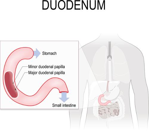 Duodenitis