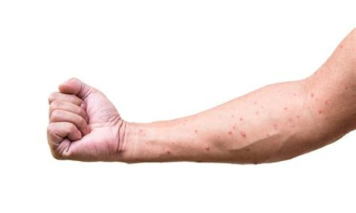 Is Chickenpox Contagious