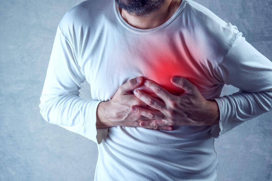 Causes Costochondritis