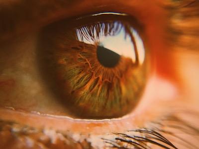 Graves' eye disease
